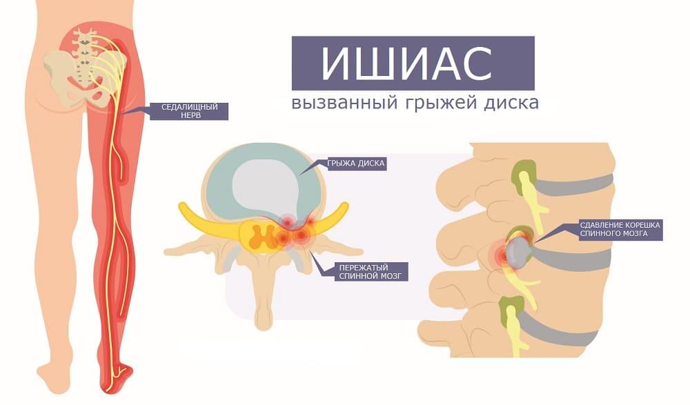 Ущемление седалищного нерва при грыже