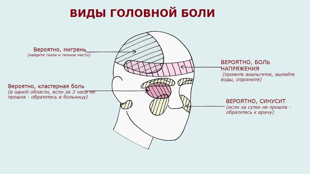 Вероятные причины головной боли