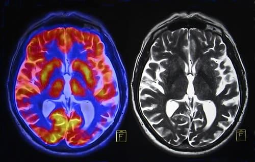 Мозг на КТ и МРТ
