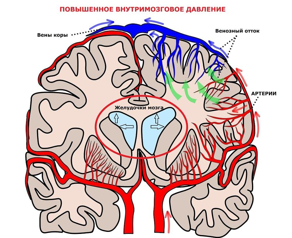Скопление ликвора вызывает головную боль