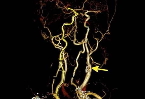 Стеноз сосудов хорошо видно на МРТ
