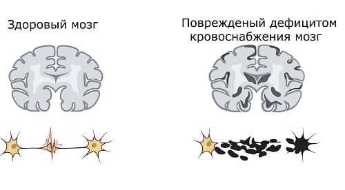Стеноз сосудов разрушает нейроны