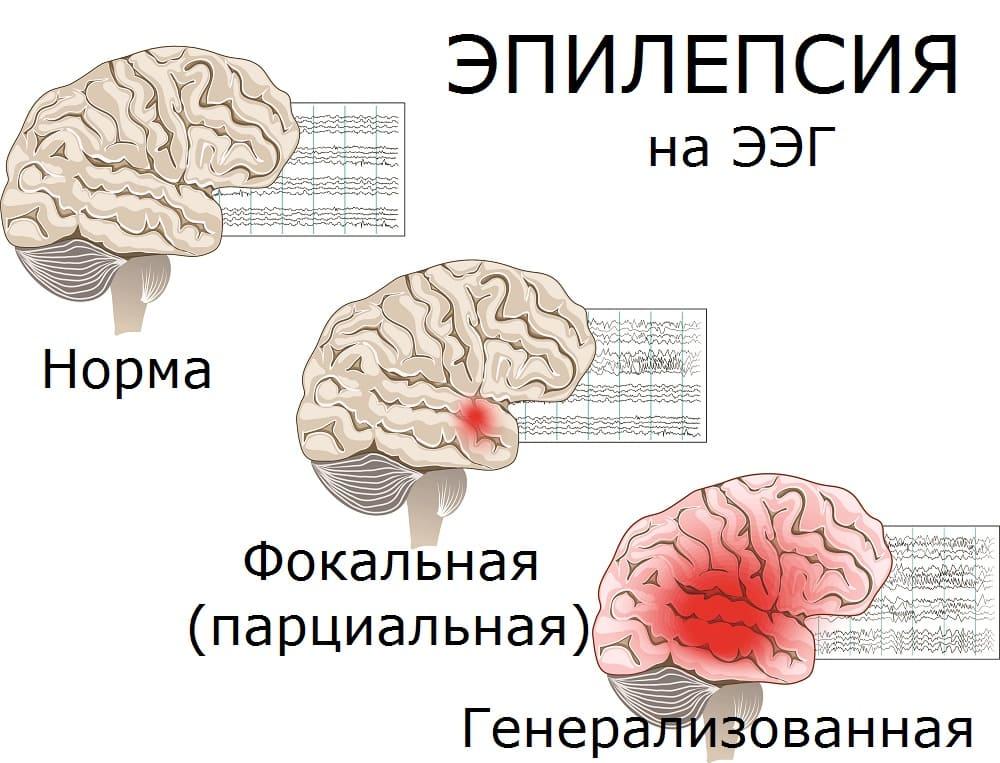 ЭЭГ при разных типах эпилепсии