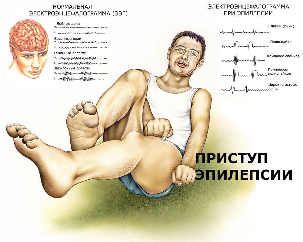 Эпилепсия на ЭЭГ и судороги