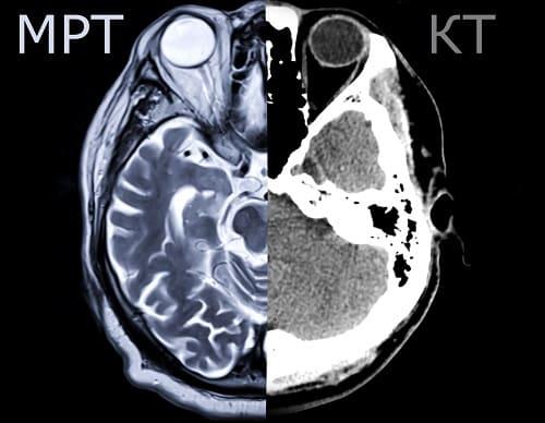 Сравнение мозга на КТ и МРТ