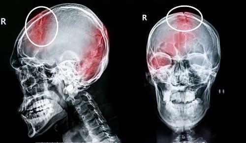 Травма головы на рентген снимке