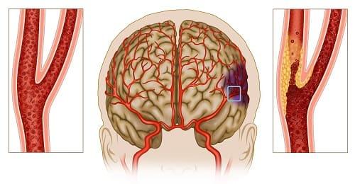 Атеросклероз причина боли в виске