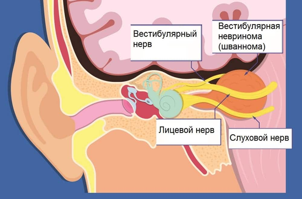 Вестибулярная шваннома причина головокружения