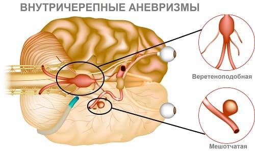 Аневризмы сосудов мозга