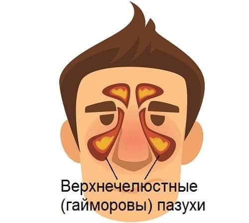 Гайморит причина боли в брови