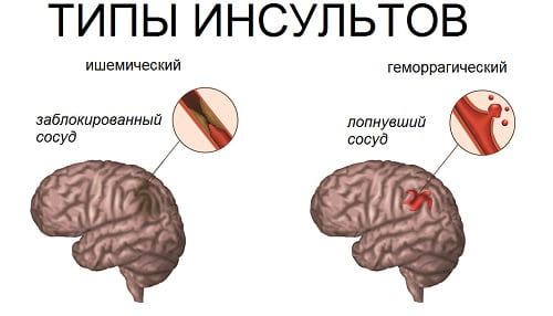 Головная боль от инсульта