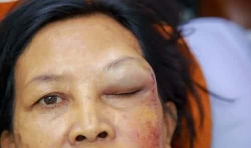 Опухоль брови у женщины