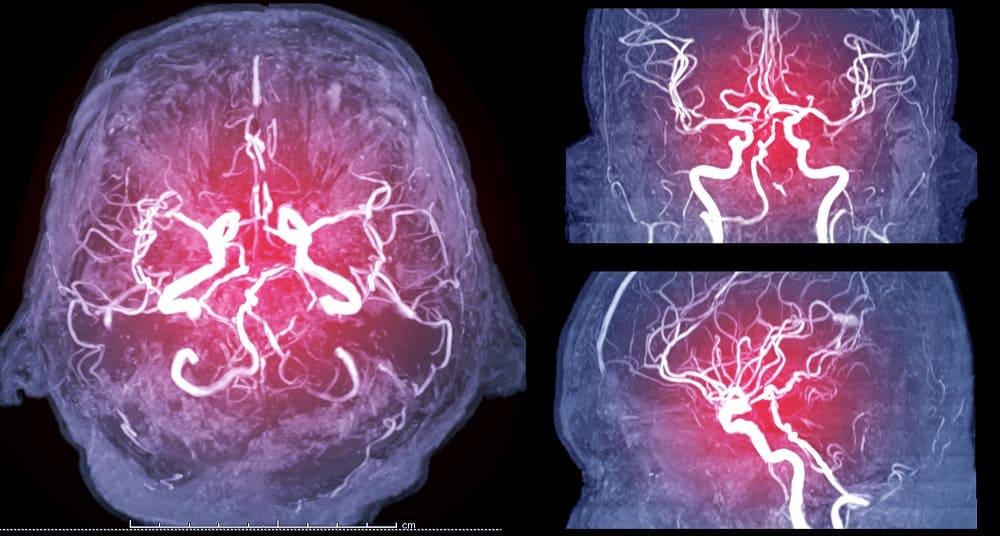 Сосуды мозга на КТ