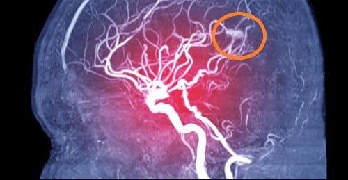 Аневризма мозга на МРТ