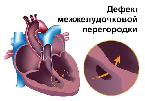 Болезни сердца причины слабости
