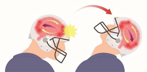 Головокружение после травмы головы