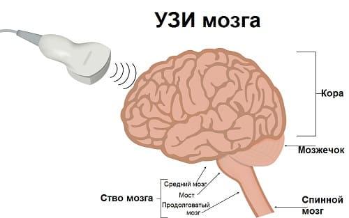 УЗИ мозга выяснить причины слабости