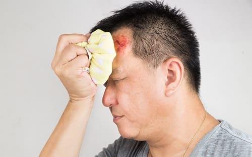 Боль во лбу и висках после травмы