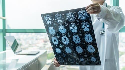 КТ диагностика головной боли