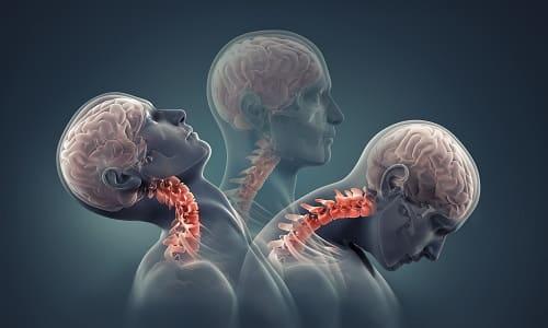 Механизм хлыстовой травмы шеи