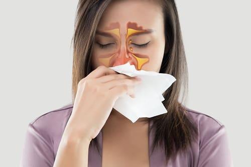 Синусит – причина боли во лбу и висках