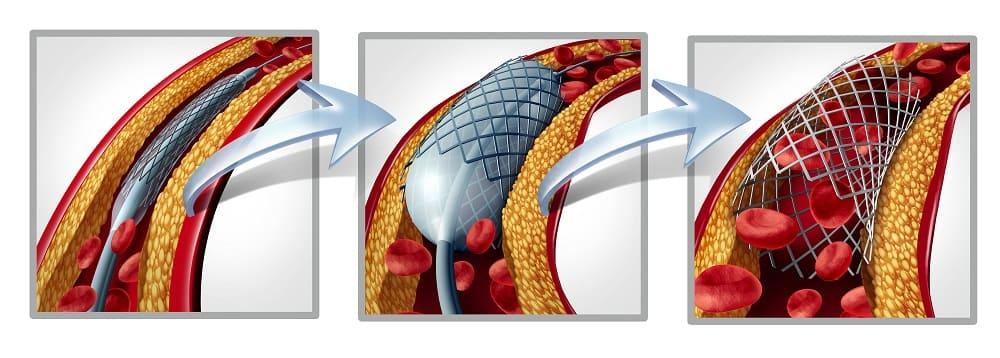 Стентирование при атеросклерозе сосудов