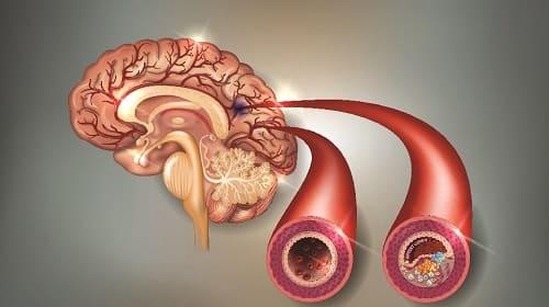 Атеросклероз причина пульсирующей головной боли