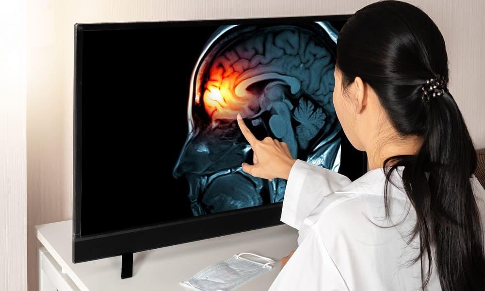 Диагностика причины головной боли