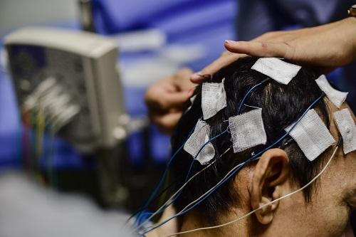 ЭЭГ диагностика приступов головной боли