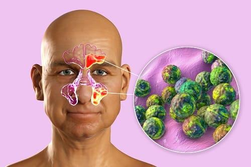 Гайморит и фронтит вызывают боль в переносице и лбу