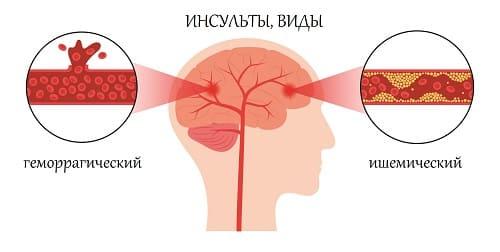 Инсульты причина боли в висках и затылке